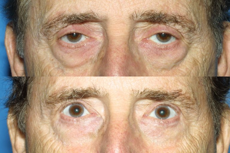 Blepharoplasty for Nova, (20200720150715461) 20200720150825173