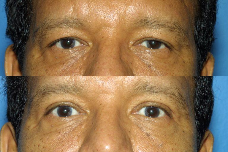 Blepharoplasty for Nova, (20200720150715461) 20200720150827113