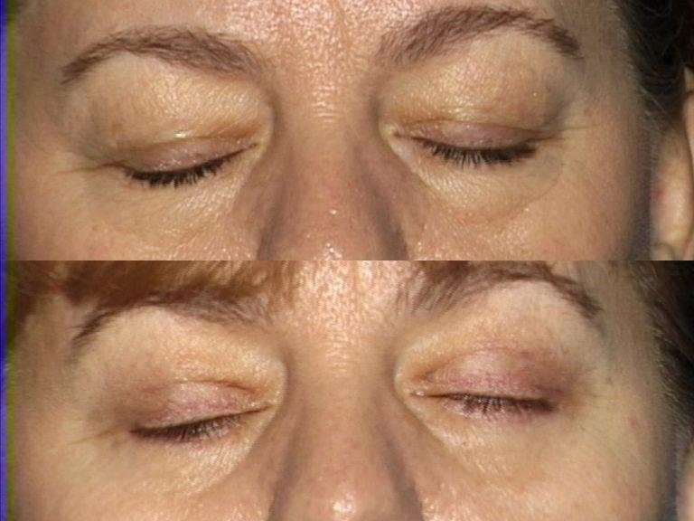Blepharoplasty for Nova, (20200720150715461) 20200720151245552