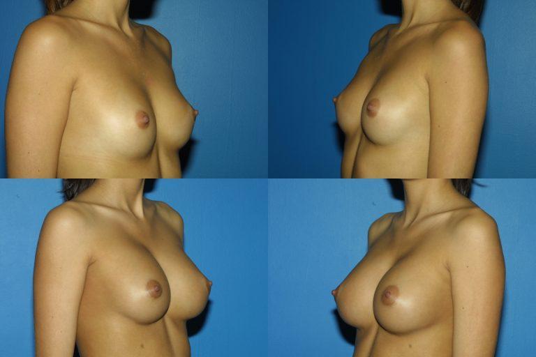 Breast Augmentation, (19990222164204765) 20060220154258042