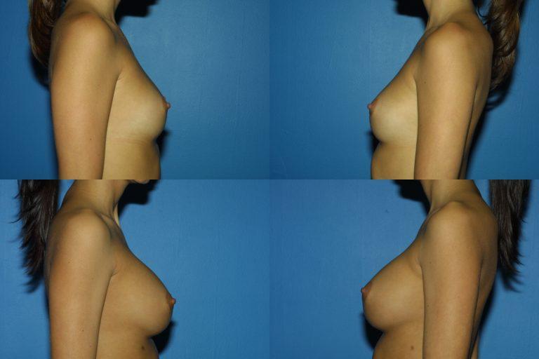 Breast Augmentation, (19990222164204765) 20060220154258323