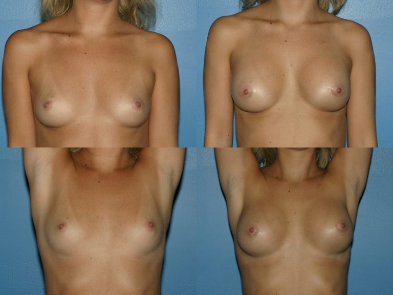 Breast Augmentation, (19990222164204765) 20200130120543291