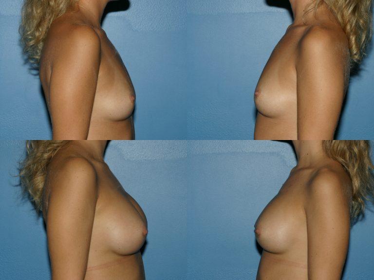 Breast Augmentation, (19990222164204765) 20200130120544744